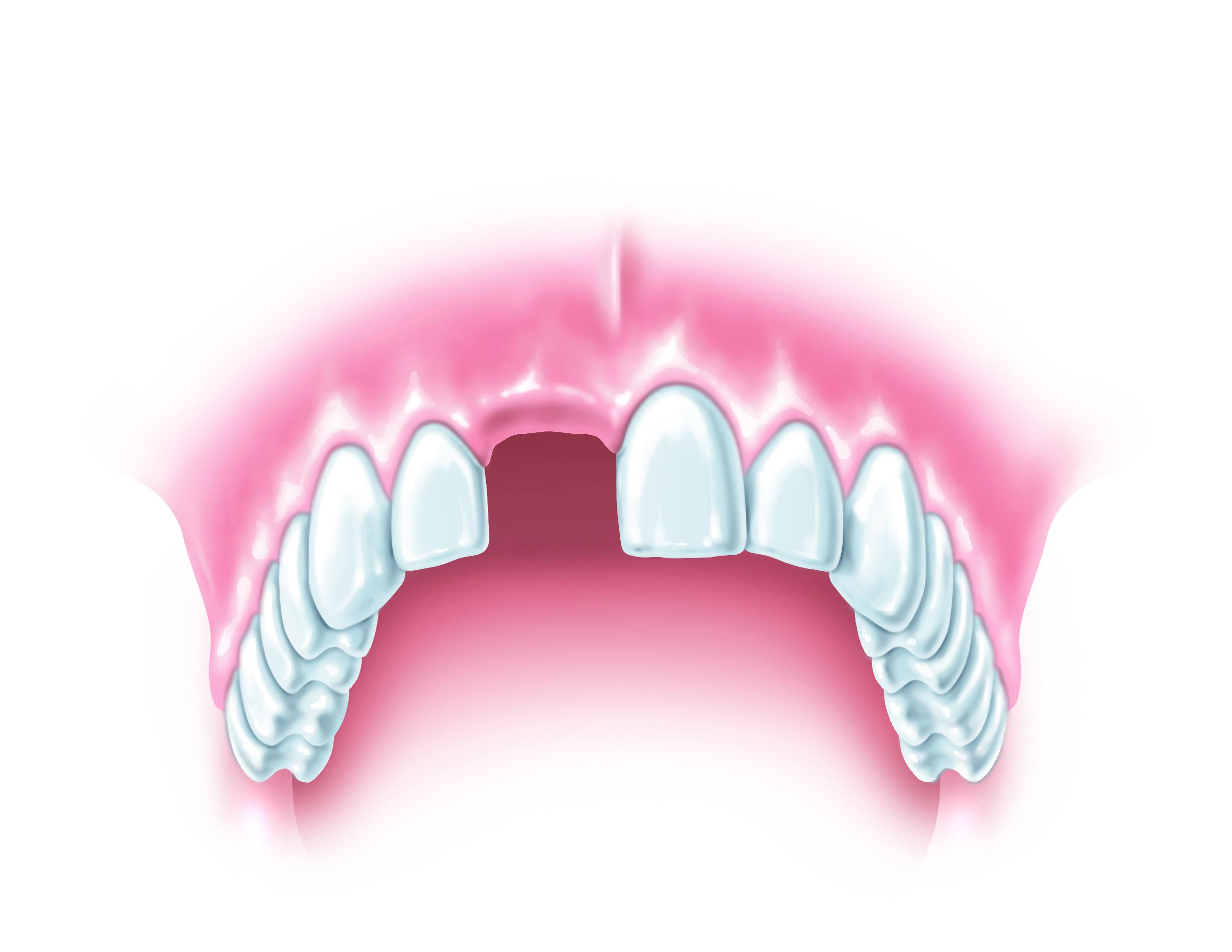 Eksik diş, bakın vücuda ne zarar veriyor