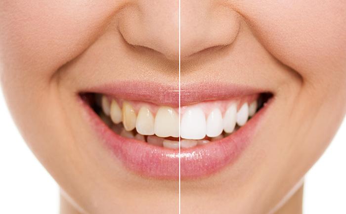 Diş beyazlatma yaptırırken dikkat!