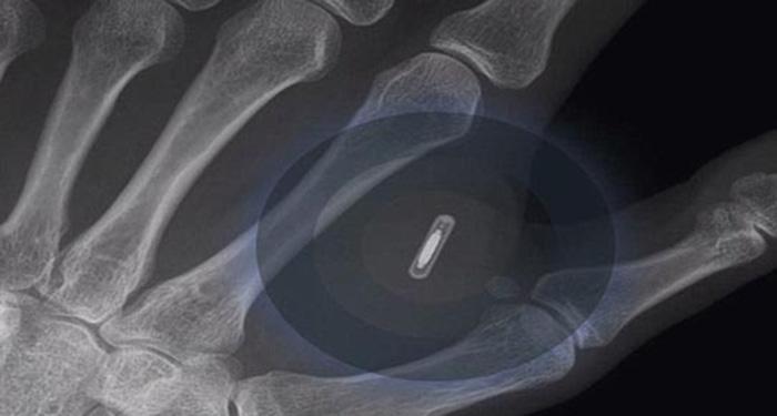 i-Phone 6 için bakın eline ne yaptı!
