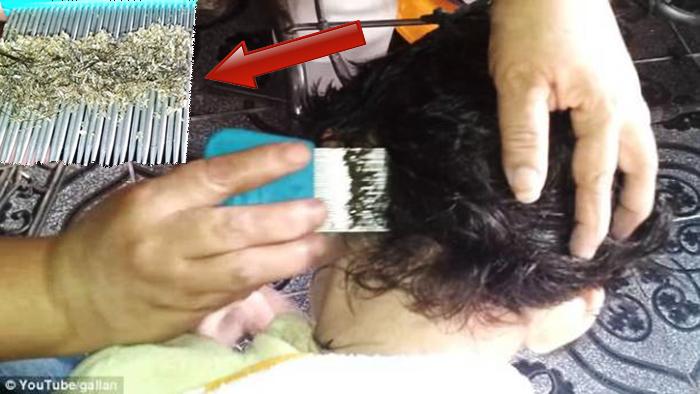 Saçındaki bitlere inanamayacaksınız