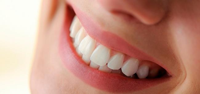 Dişlerinize Bonding yöntemi ile altın vuruş yapın