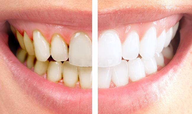 Diş beyazlatmada nelere dikkat etmeli?
