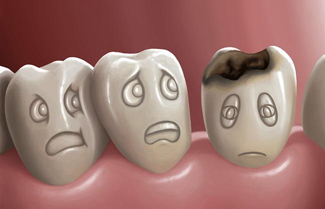 Diş çürükleri nasıl engellenir?