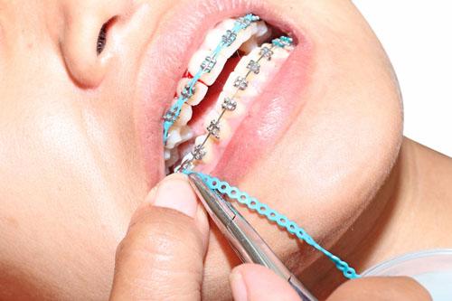 hangi-dislere-ortodontik-tedavi-uygulanir-2