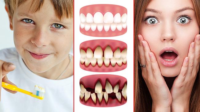 Diş çürüğü nasıl engellenir?