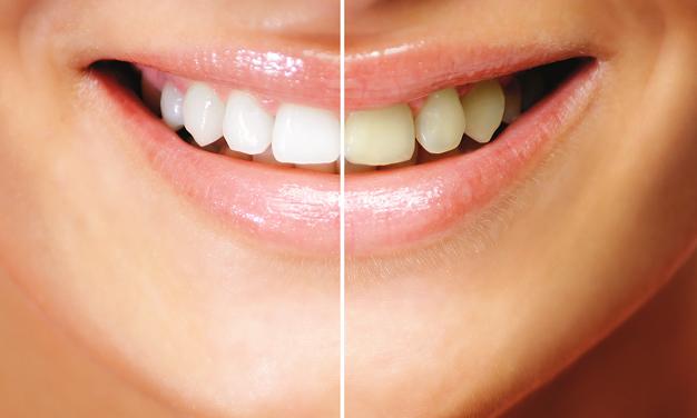 Dişlere zarar veren gıdalar