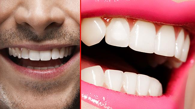 Dişlerin çürümemesi için ne yapmalı?