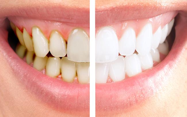 Dişlerini beyazlatmak isteyenler dikkat!