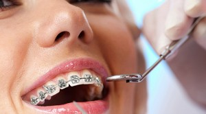 Ortodonti tedavisini ihmal etmeyin