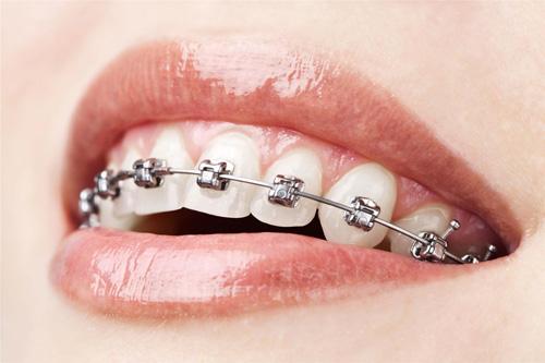 ortodonti-tedavisini-ihmal-etmeyin-2