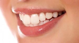Beyaz dişler için ne yapılmalı?