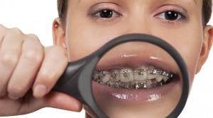Diş teli hangi yaşa uygun?
