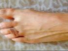 Ayak parmaklarına lastik bağlamanın sırrı